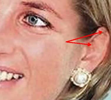Princess Diana Ωτοβελονισμός